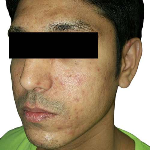 acne scar reduction - before