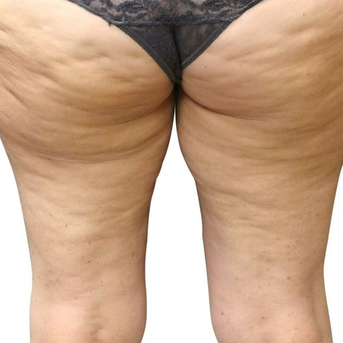 Body shaping treatments venus treatments cellulite reduction ccuart Images