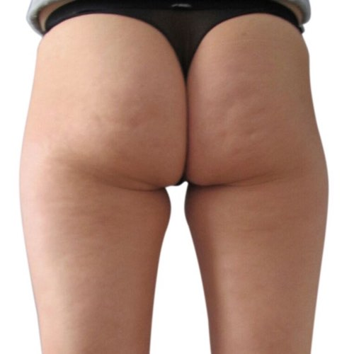 cellulite reduction treatments | venus treatments
