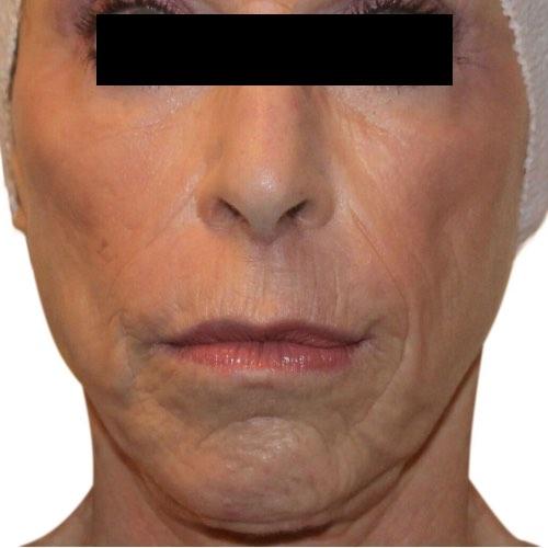 Venus Versa Face & Body Treatments | Venus Treatments USA