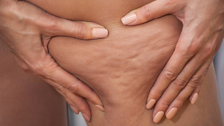 Why Some Women Get Cellulite and Others Don't
