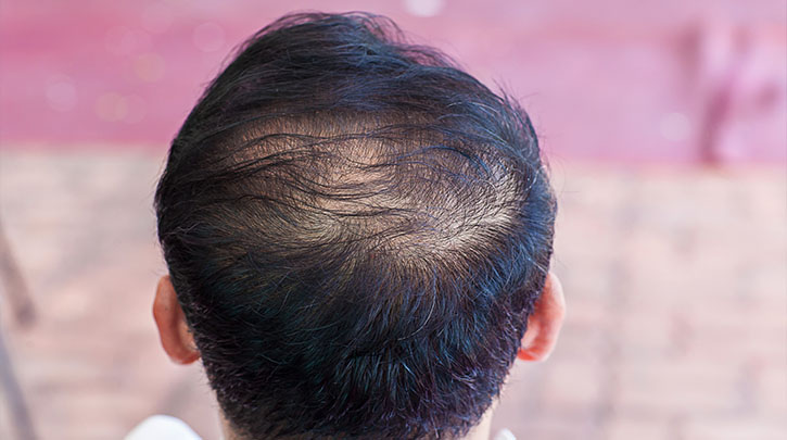 Best Treatments for Thinning Hair for Men and Women