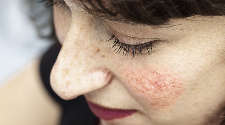 How to Talk to Your Doctor About Rosacea