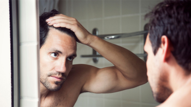 Top 10 Myths About Hair Loss